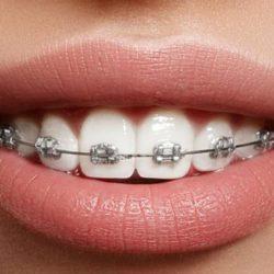 Исправление зубов на элайнерах
