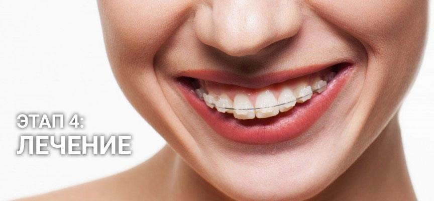 Лечение зубов, этап 4