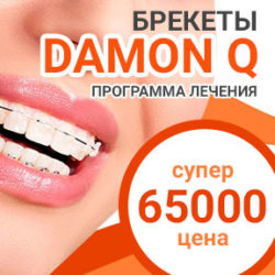 Акция по брекетам Damon Clear и Q для всей Москвы