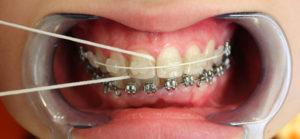 Чистка зубной нитью при брекетах