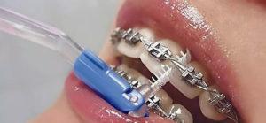 Ортодонтический ершик для внутренней части брекета